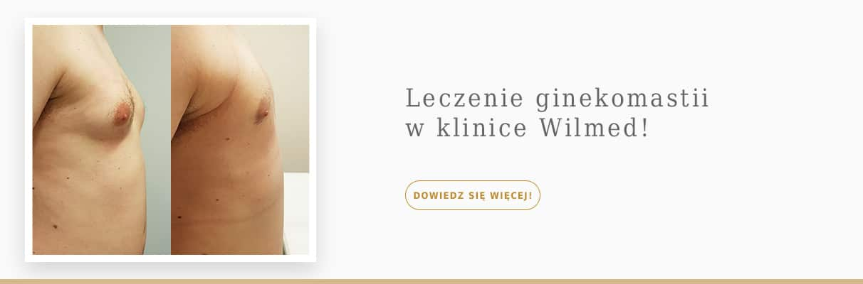 Wilmed-Leczenie-ginekomastii-slider-g